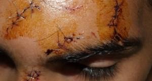 Grèce: Combien de points de suture peut-il contenir un visage d'enfant?